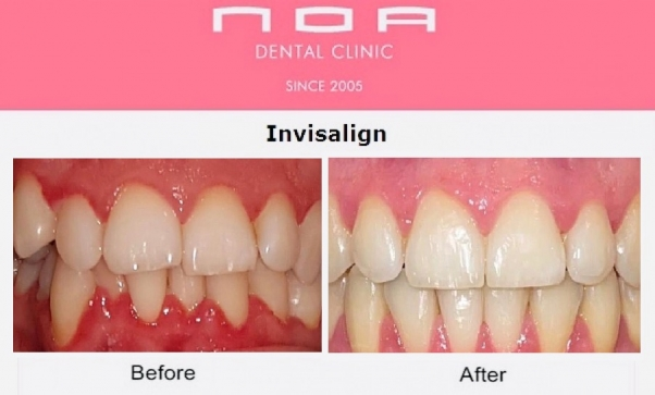 Invisalign Dubai Before and After Pic