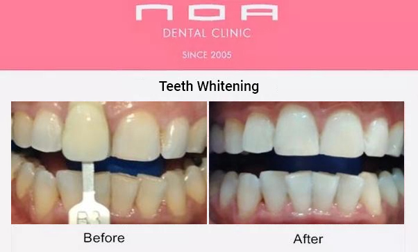 Teeth Whitening Dubai Before and After Pic
