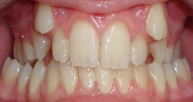 Braces in Dubai Before Pic