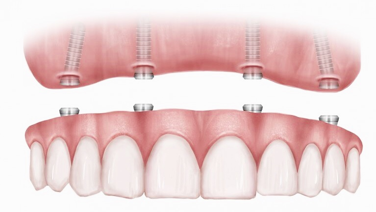 All on 4 Dental implants in Dubai