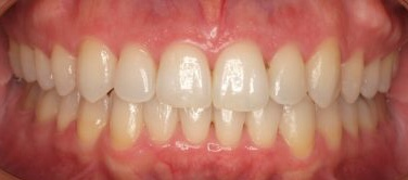 Invisalign after pic