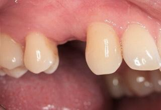 Dental Implants Dubai Before Pic
