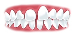 Treatable Dental Problems With Lingual Braces