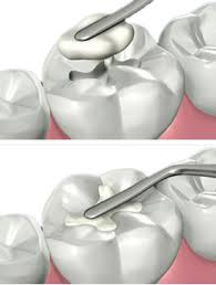 Root Canal Service in Dubai