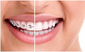 Invisible Braces: the Clear alternative to conventional Braces?