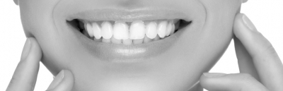 What You Need to Know About Dental Braces