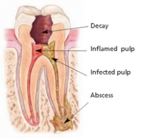 Is Root Canal Painful? What to Expect After the Procedure
