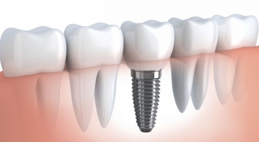 5 Reasons Why You Should Consider Dental Implants