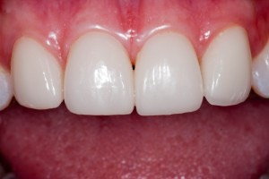 What Is a Dental Crown & How Can It Improve Your Smile?